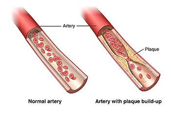 Comparing normal artery to artery with plaque build-up